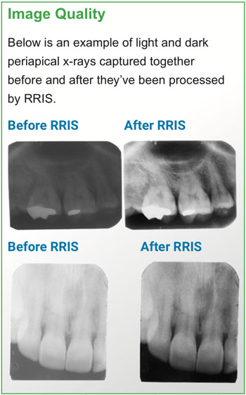 Image Quality: Examples of periapical x-rays captured before and after RRIS